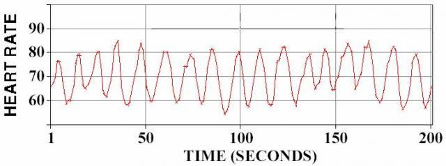 Gambar-3.-Ploting-nilai-heart-rate-sesaat-dari-satu-siklus-ke-siklus-berikutnya-yang-menunjukkan-adanya-perubahan-heart-rate-heart-rate-variability-HRV-secara-kontinyu