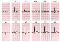 Bentuk sinyal EKG 12 sadapan