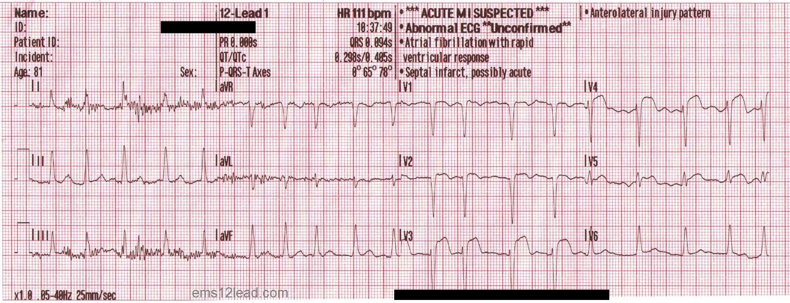 Sinyal ECG 12 sadapan
